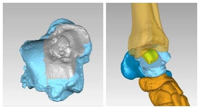 3D打印设计